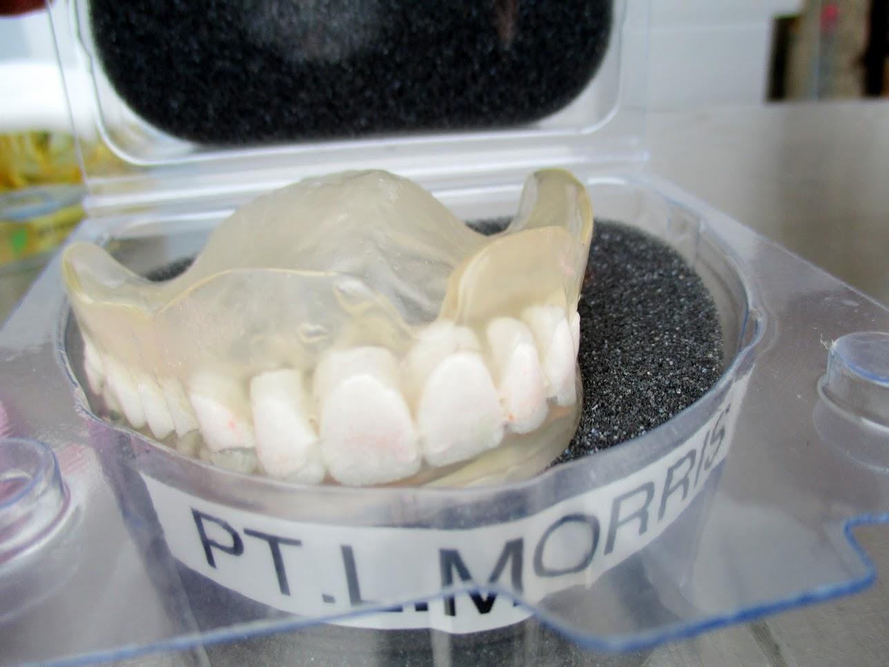 Lot 1 - Dental Models/Molds