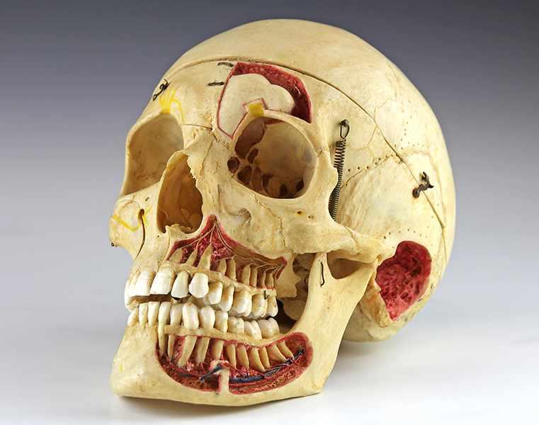 """Lot 53 - Medizin - - Anatomisches Schädelpräparat. Berlin um 1900, signiert """"A. & P. Seifert praep., Berlin"""