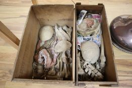 An early 20th century medical half skeleton with skull in H K Lewis & Co pine box and a part