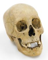 A human skull, 21cm wide.
