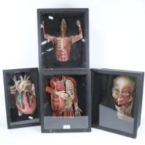A group of four 3-dimensional anatomical cardboard cut-outs, in display case frames, largest