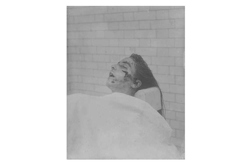 ***SENSITIVE CONTENT***Forensic Photographer Unknown c.1920s - Image 7 of 8