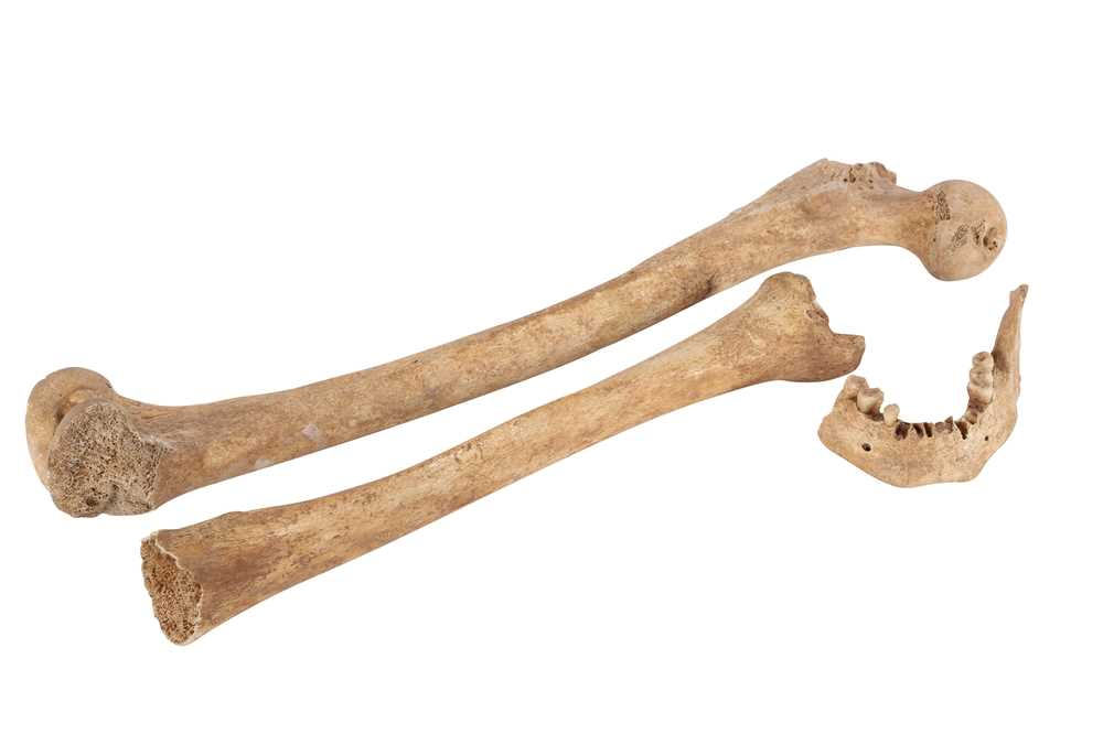 ARCHEOLOGY /OSTEOLOGY: ROMAN HUMAN BONES