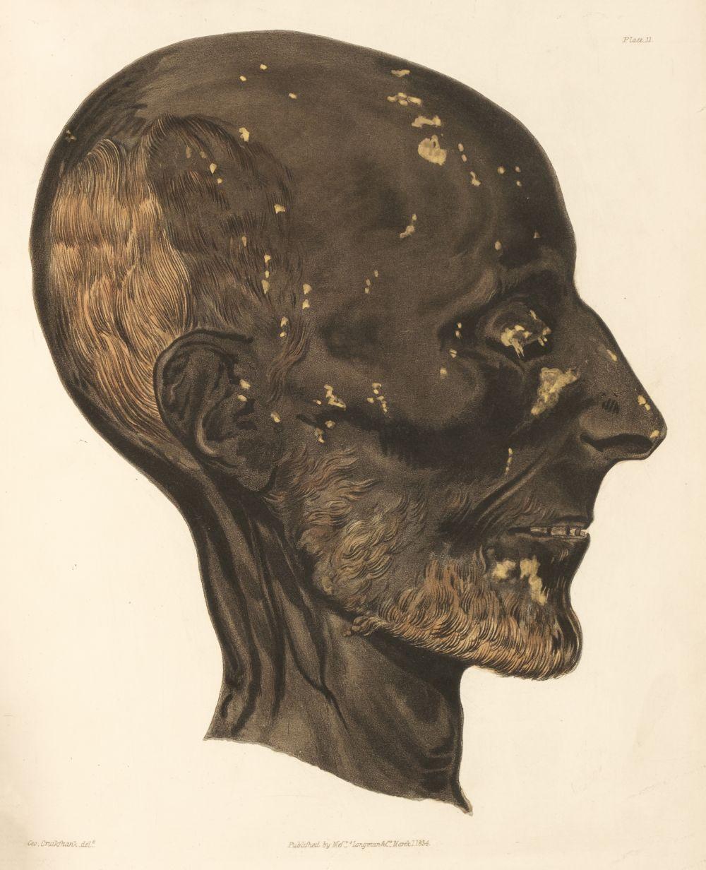 Pettigrew, Thomas Joseph. A History of Egyptian Mummies