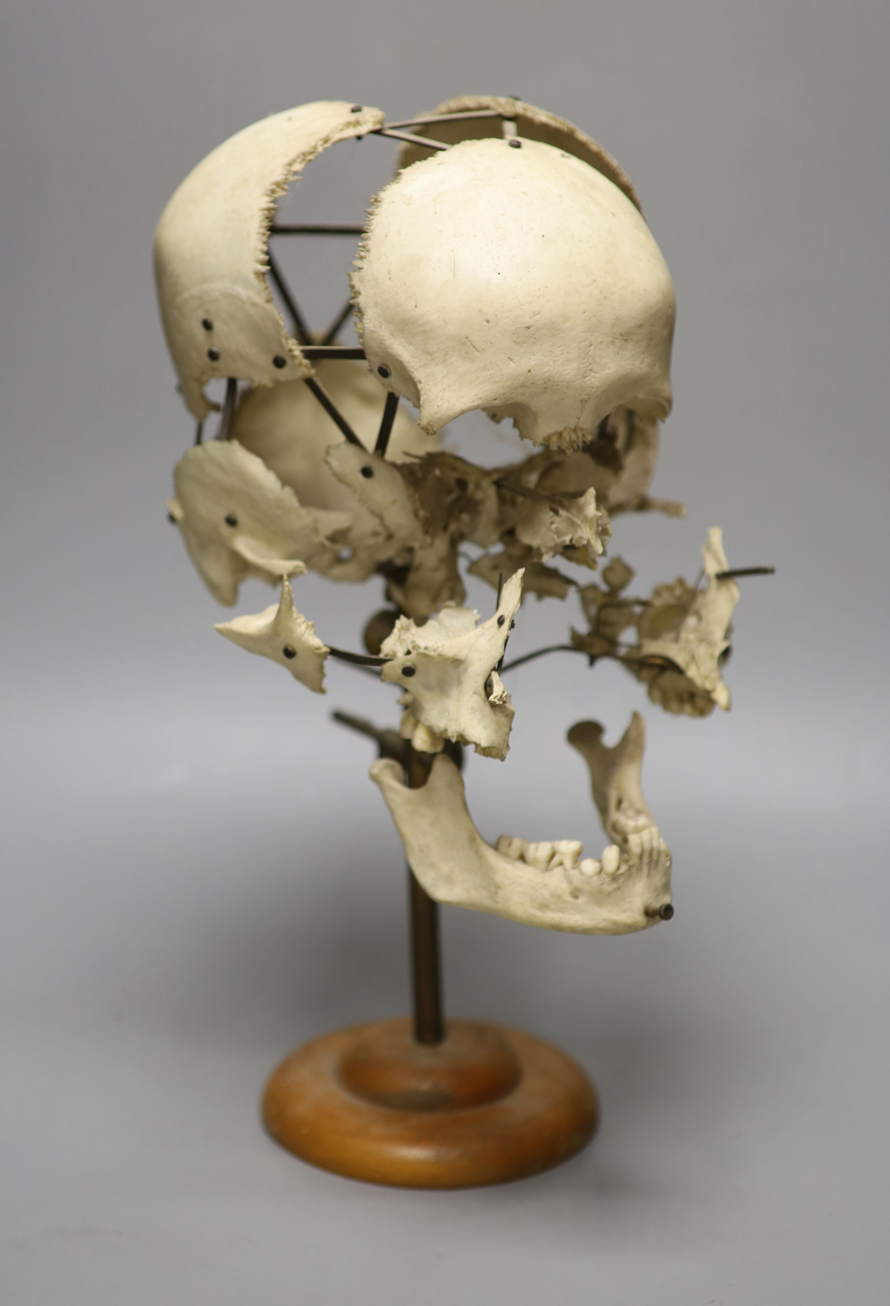 A human skull specimen, 1920s-30s, mounted in exploded form, adjustable brass arms and oak base,
