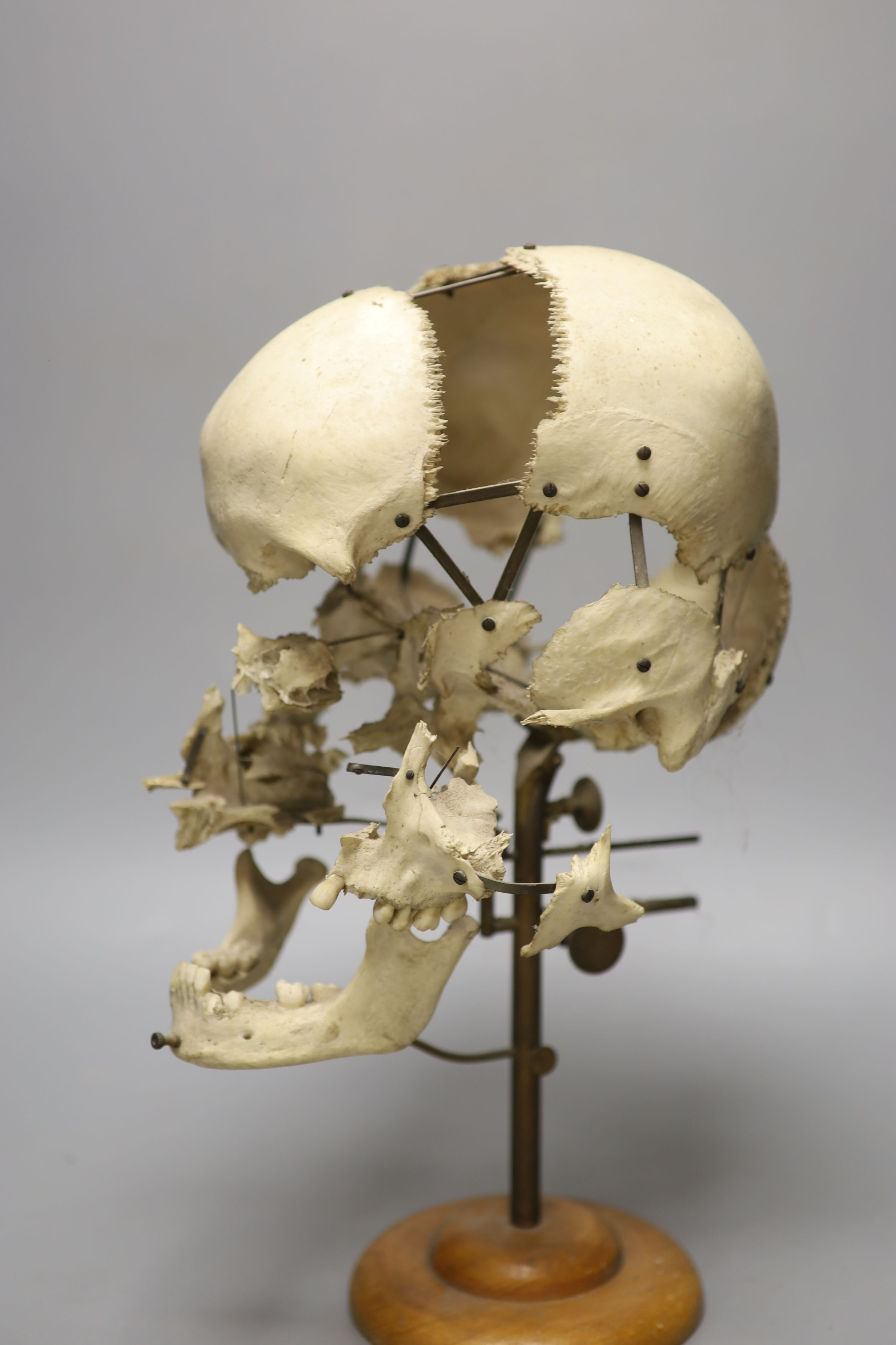 A human skull specimen, 1920s-30s, mounted in exploded form, adjustable brass arms and oak base, - Image 2 of 3