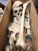 A PINE BOX OF A PARTIAL HUMAN SKELETON TO INCLUDE THE SKULL
