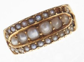 A Victorian split pearl ring, in 18ct gold, Chester 1881, 3.7g, size J Several pearls deficient