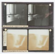 Stereoscopic Glass Diapositives, including set of early 20th Century, South Africa, some with