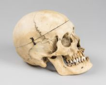 A LATE 19TH CENTURY HUMAN SKULL WITH SPRUNG JAW AND REMOVABLE TOP (h 15.5cm x w 13.5cm x d 23cm)