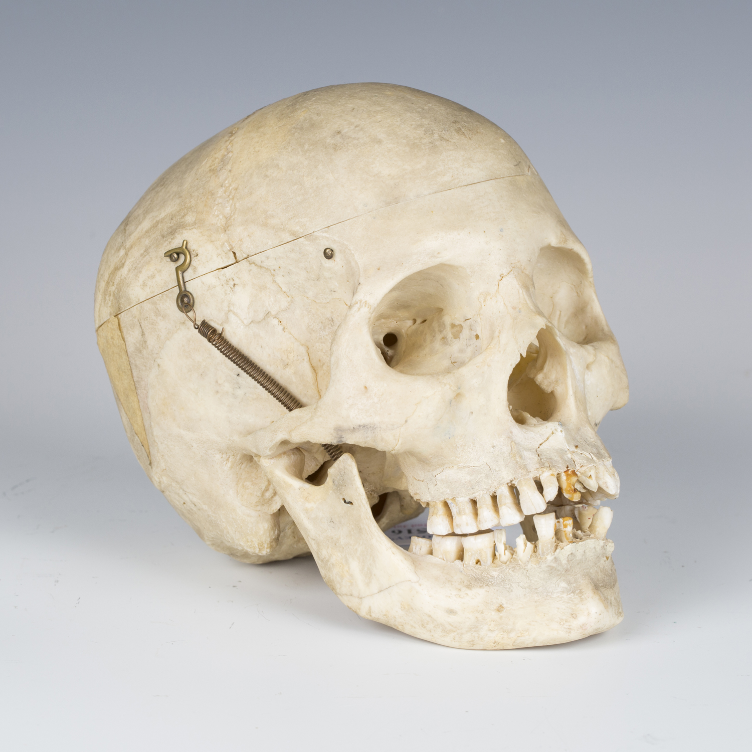 A human skull with hinged cranium and sprung jaw.Buyer's Premium 29.4% (including VAT @ 20%) of
